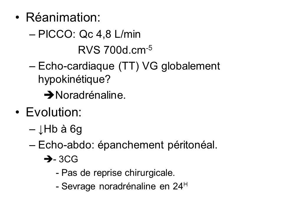 Réanimation: Evolution: PICCO: Qc 4,8 L/min RVS 700d.cm-5
