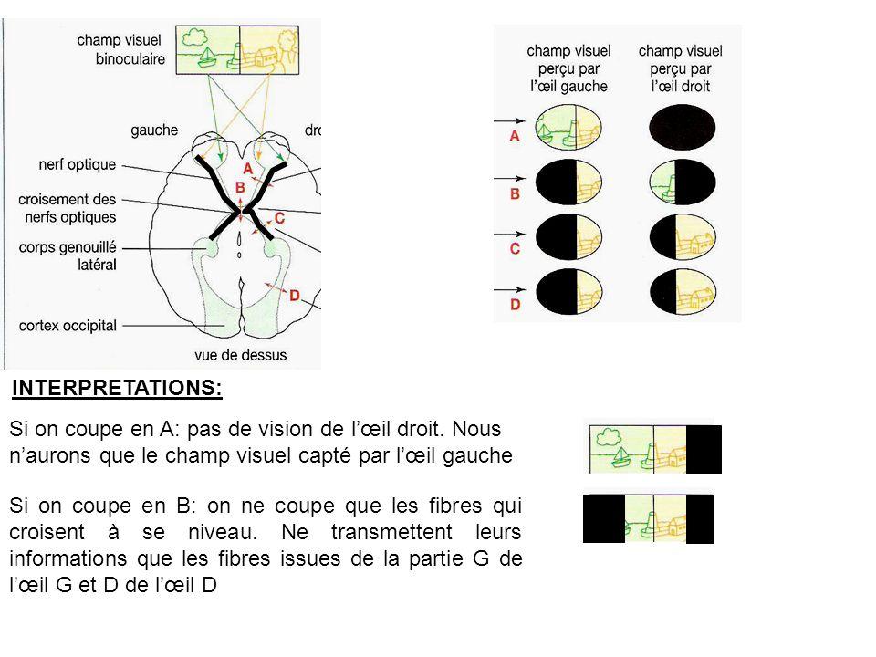 INTERPRETATIONS: Si on coupe en A: pas de vision de l'œil droit. Nous n'aurons que le champ visuel capté par l'œil gauche.