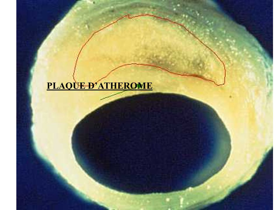 PLAQUE D'ATHEROME