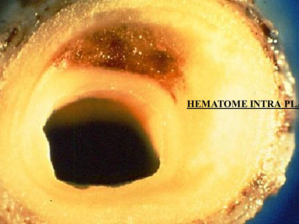 HEMATOME INTRA PLAQUE
