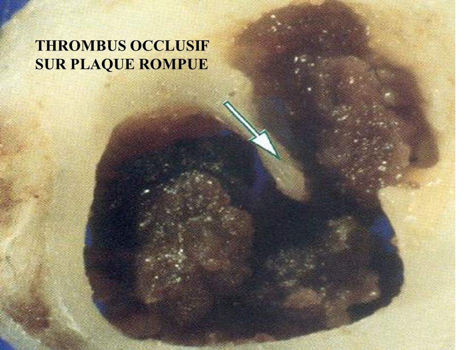 THROMBUS OCCLUSIF SUR PLAQUE ROMPUE