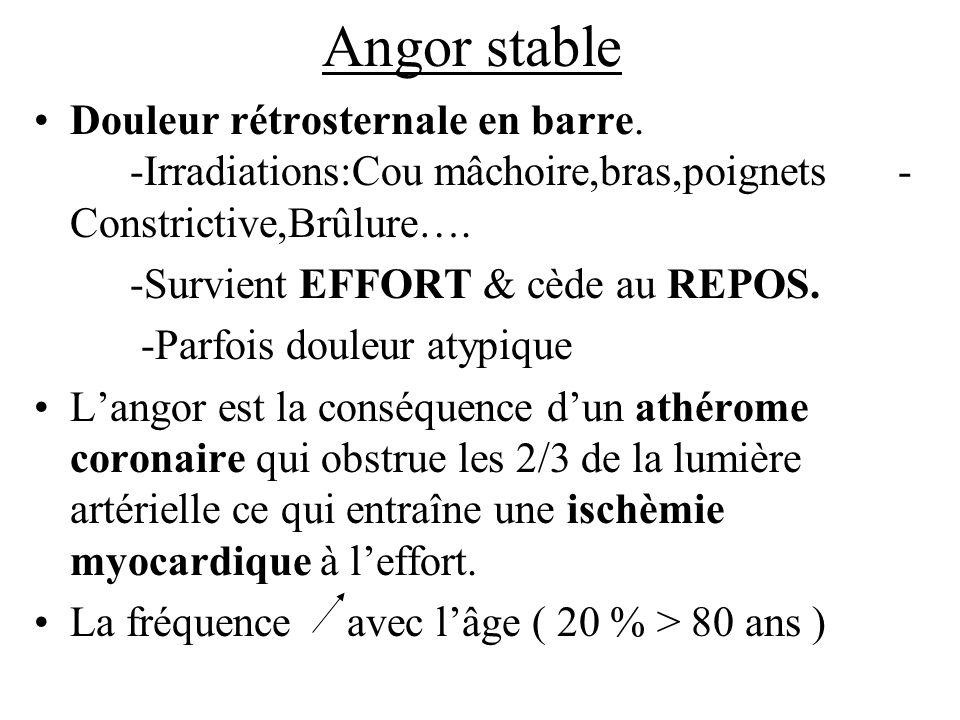 Angor stableDouleur rétrosternale en barre. -Irradiations:Cou mâchoire,bras,poignets -Constrictive,Brûlure….