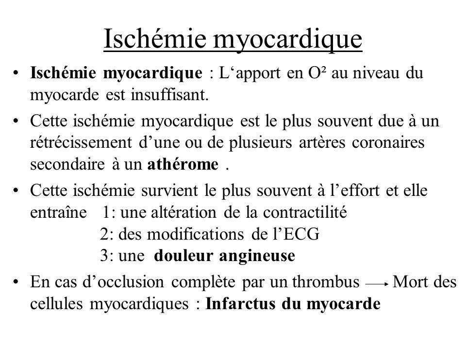 Ischémie myocardiqueIschémie myocardique : L'apport en O² au niveau du myocarde est insuffisant.