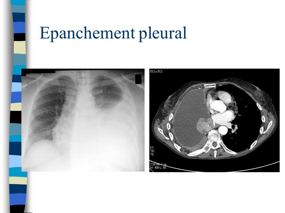 Epanchement pleural