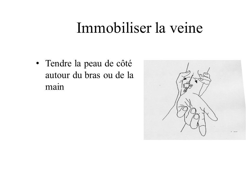 Immobiliser la veine Tendre la peau de côté autour du bras ou de la main