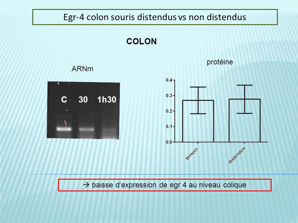 Egr-4 colon souris distendus vs non distendus