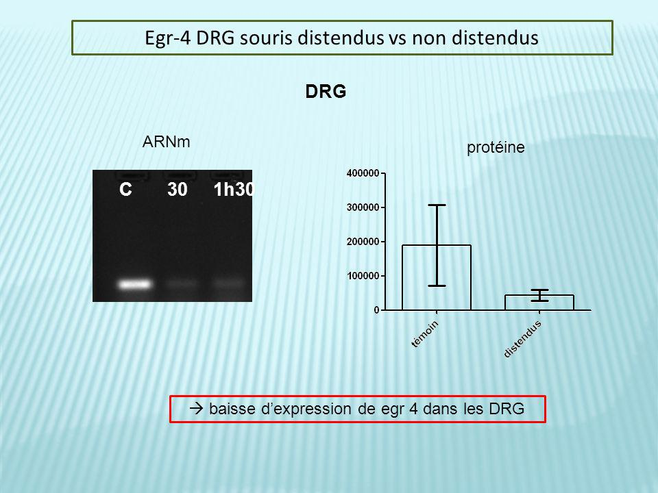Egr-4 DRG souris distendus vs non distendus