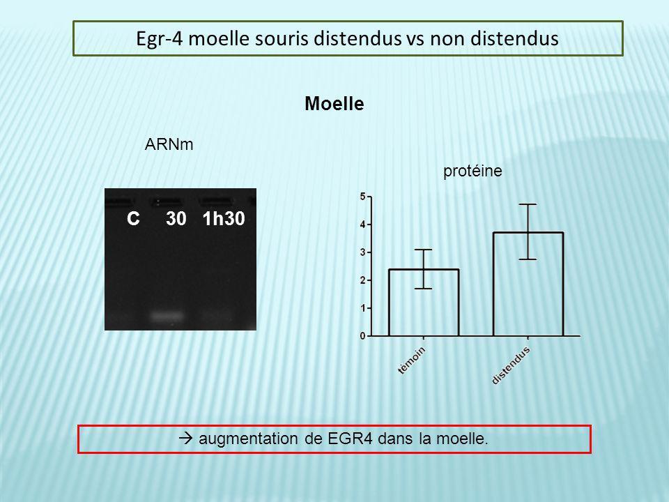 Egr-4 moelle souris distendus vs non distendus