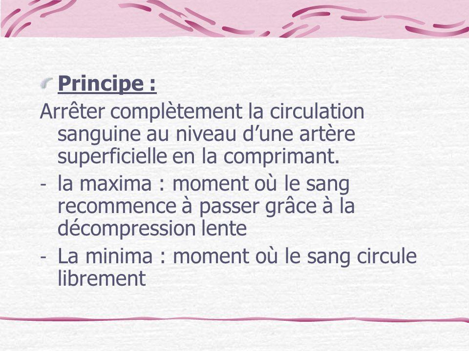 Principe :Arrêter complètement la circulation sanguine au niveau d'une artère superficielle en la comprimant.