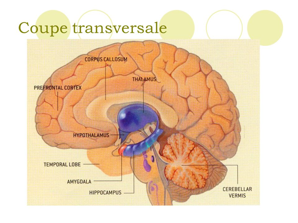 Coupe transversale
