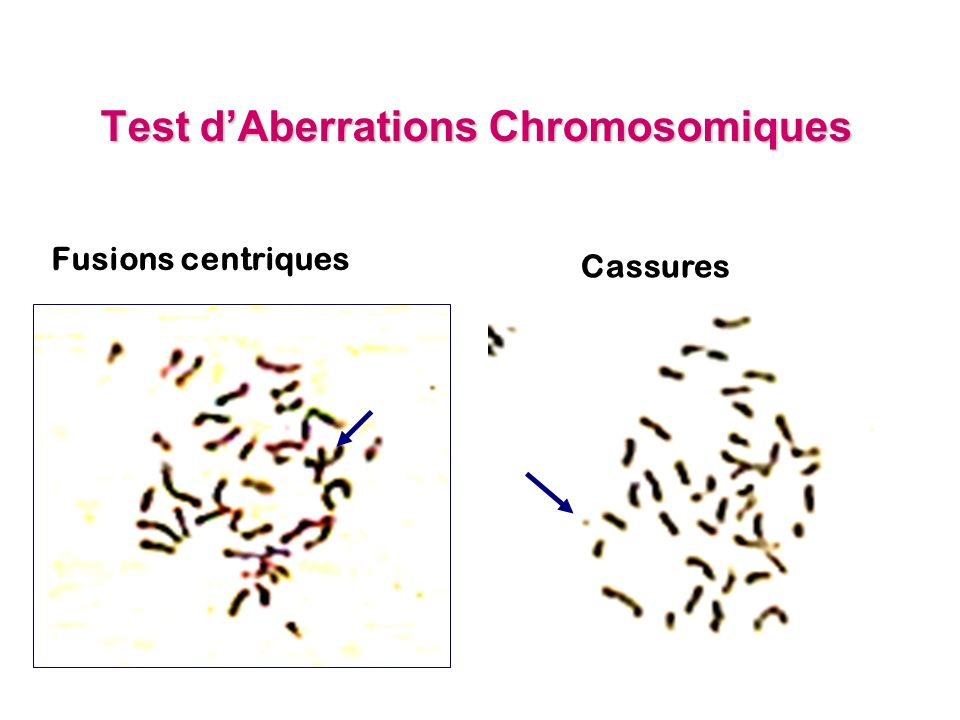 Test d'Aberrations Chromosomiques