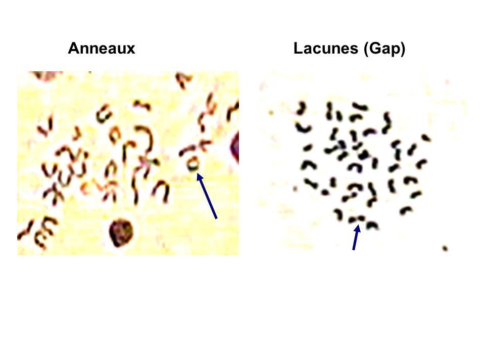 Anneaux Lacunes (Gap)