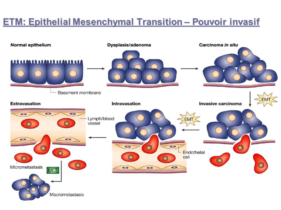 ETM: Epithelial Mesenchymal Transition – Pouvoir invasif
