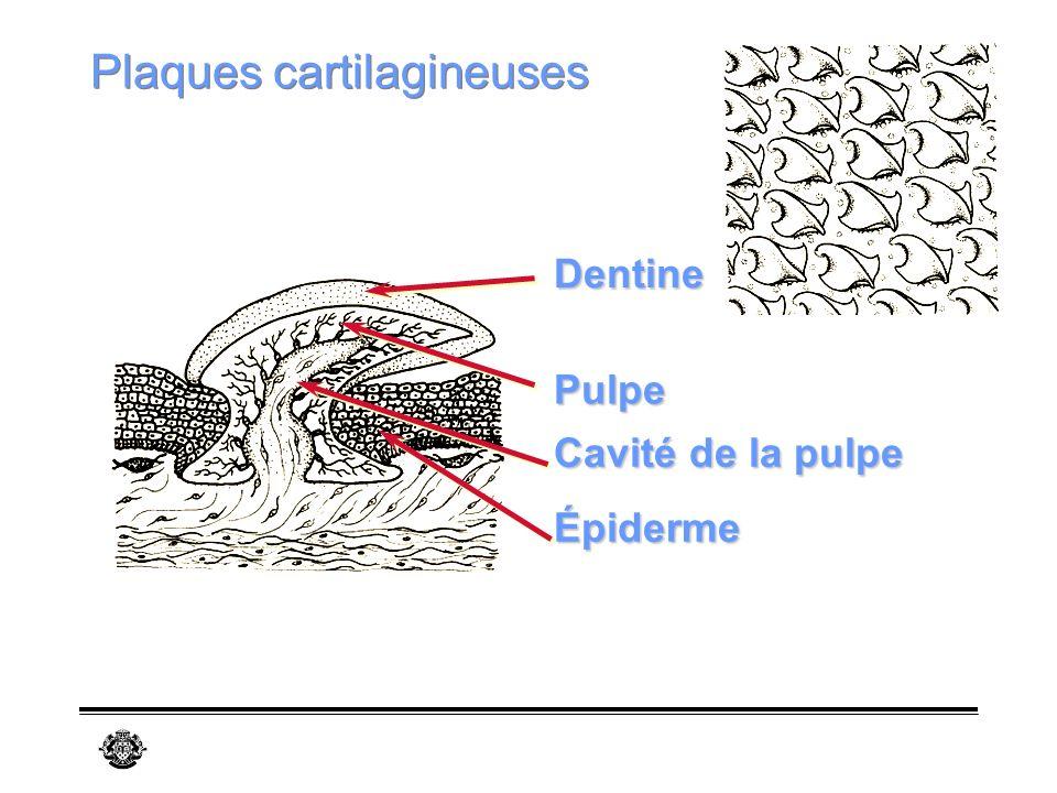 Plaques cartilagineuses