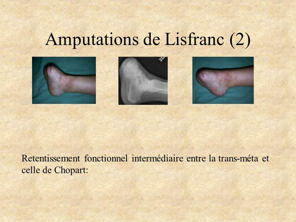 Amputations de Lisfranc (2)