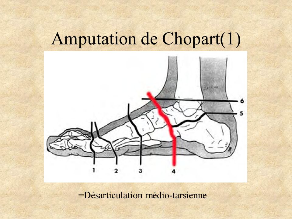 Amputation de Chopart(1)