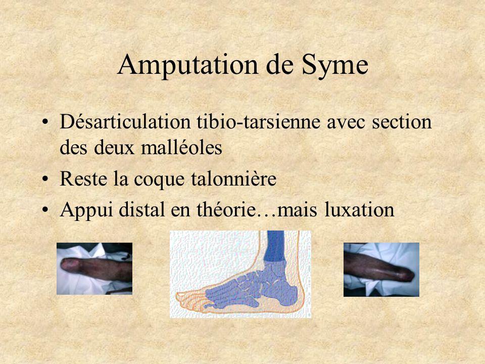 Amputation de Syme Désarticulation tibio-tarsienne avec section des deux malléoles. Reste la coque talonnière.