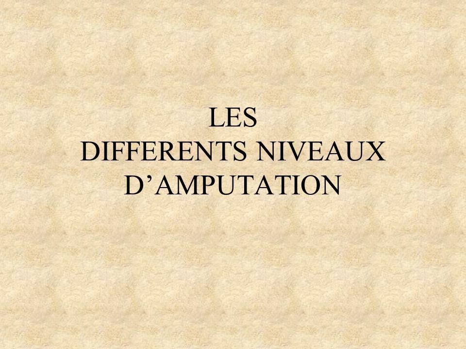 LES DIFFERENTS NIVEAUX D'AMPUTATION