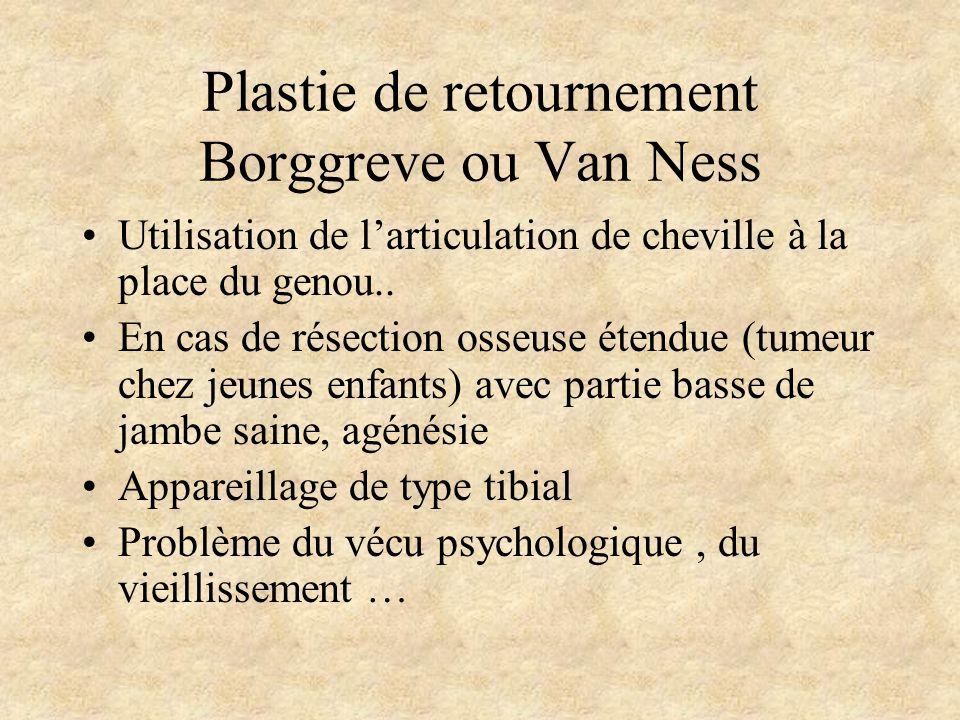 Plastie de retournement Borggreve ou Van Ness