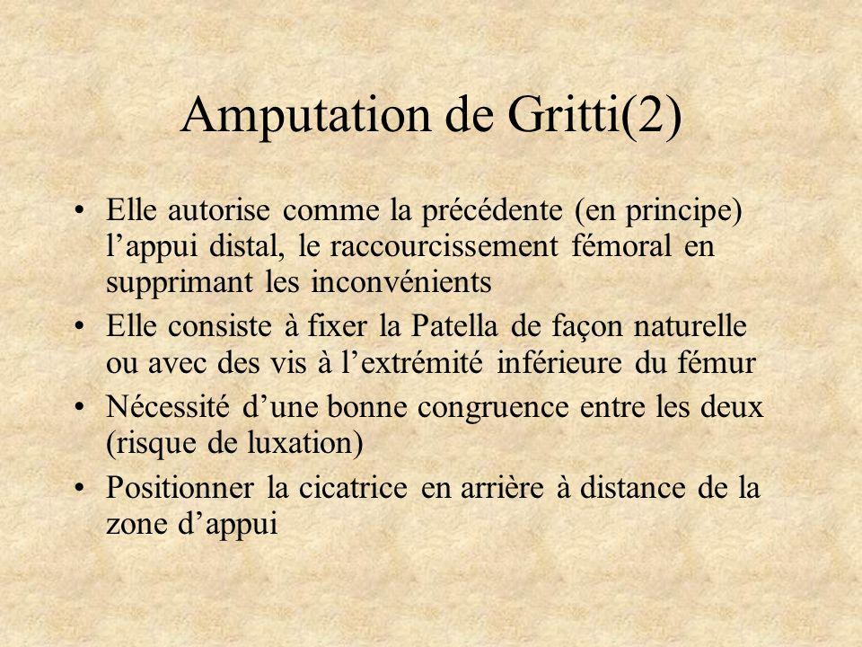 Amputation de Gritti(2)