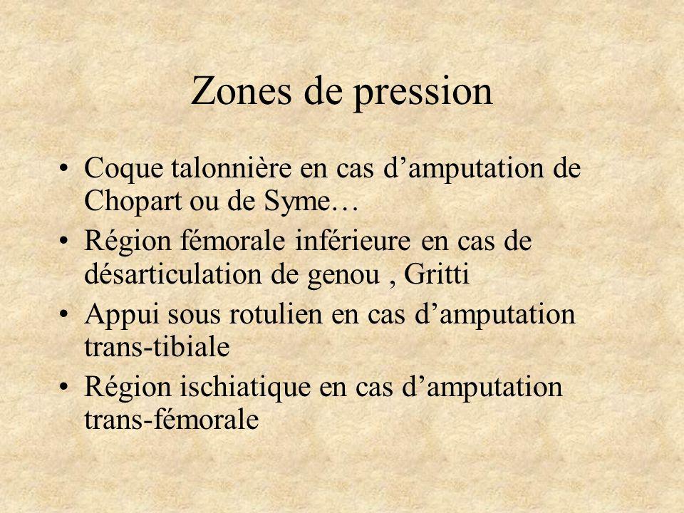 Zones de pression Coque talonnière en cas d'amputation de Chopart ou de Syme… Région fémorale inférieure en cas de désarticulation de genou , Gritti.