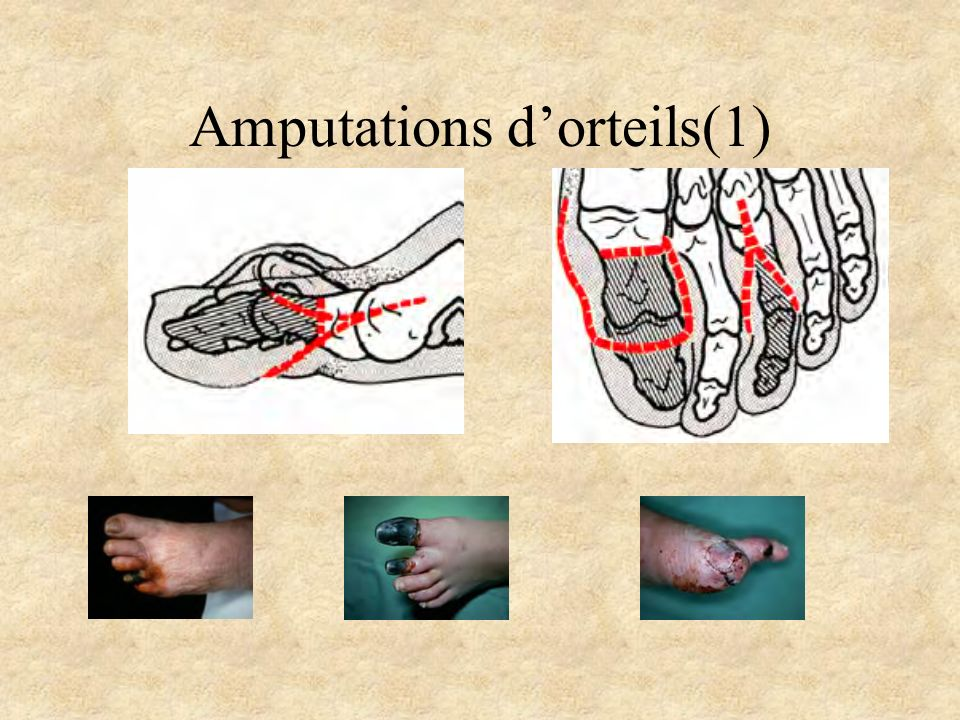 Amputations d'orteils(1)