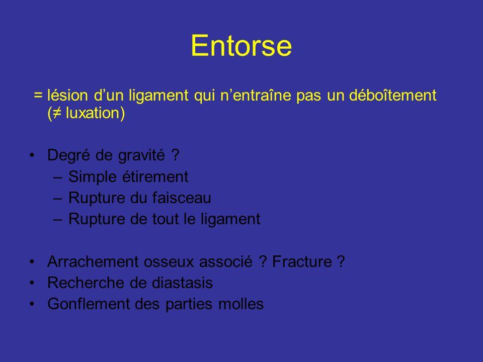 Entorse = lésion d'un ligament qui n'entraîne pas un déboîtement (≠ luxation) Degré de gravité Simple étirement.
