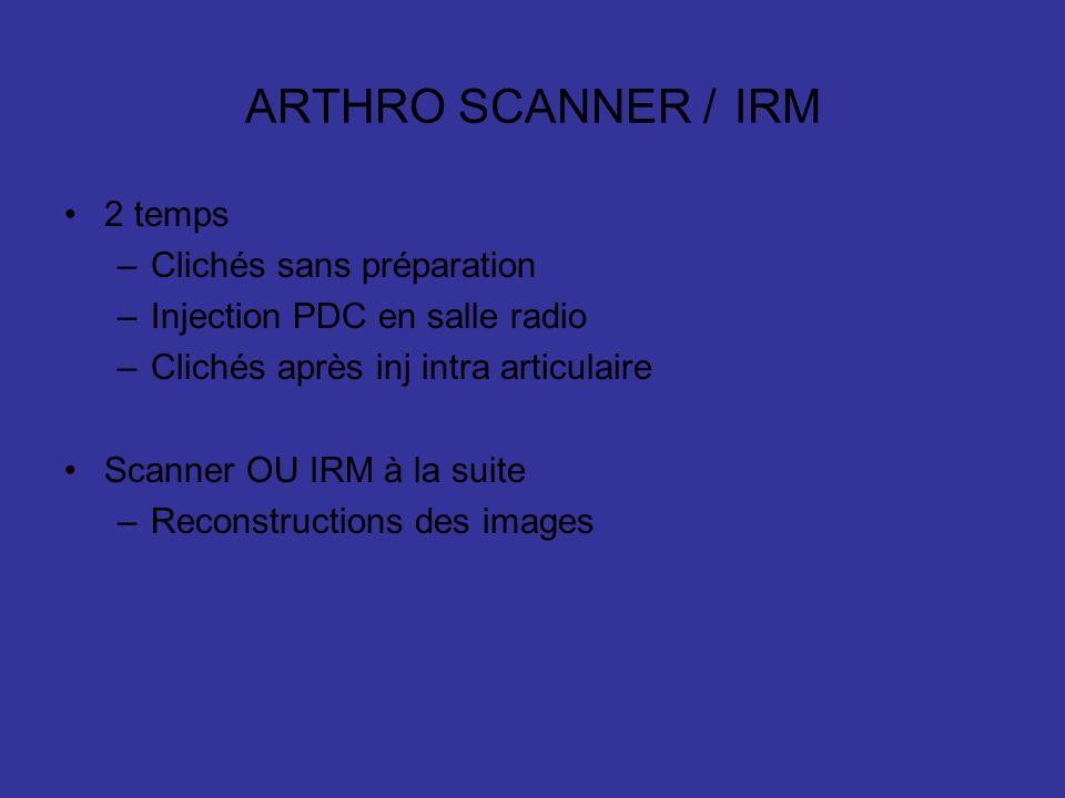 ARTHRO SCANNER / IRM 2 temps Clichés sans préparation