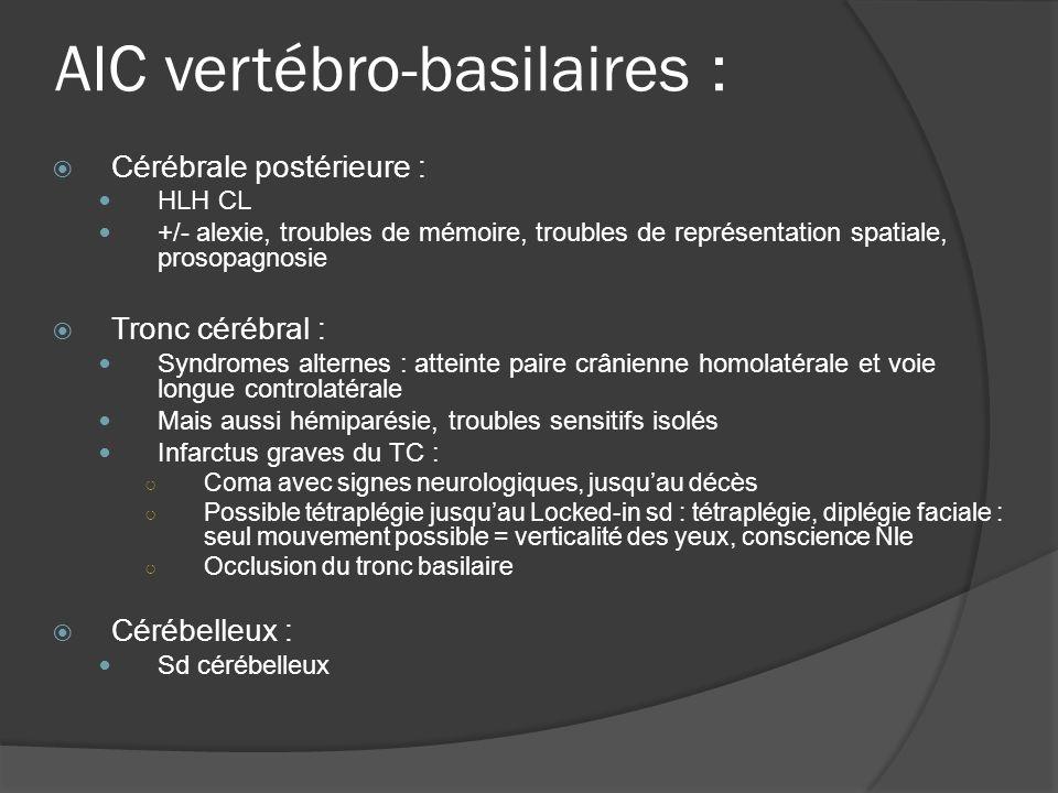 AIC vertébro-basilaires :