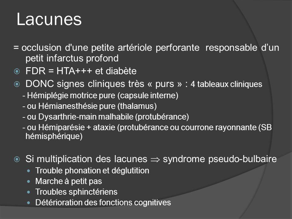 Lacunes = occlusion d une petite artériole perforante responsable d'un petit infarctus profond. FDR = HTA+++ et diabète.