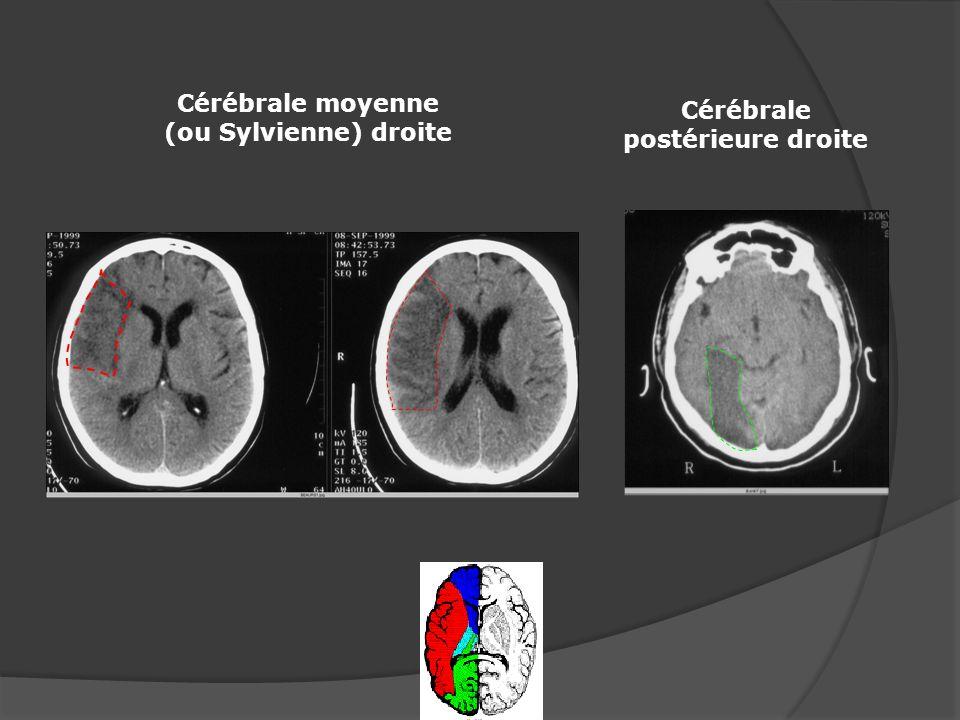 Cérébrale postérieure droite Cérébrale moyenne (ou Sylvienne) droite