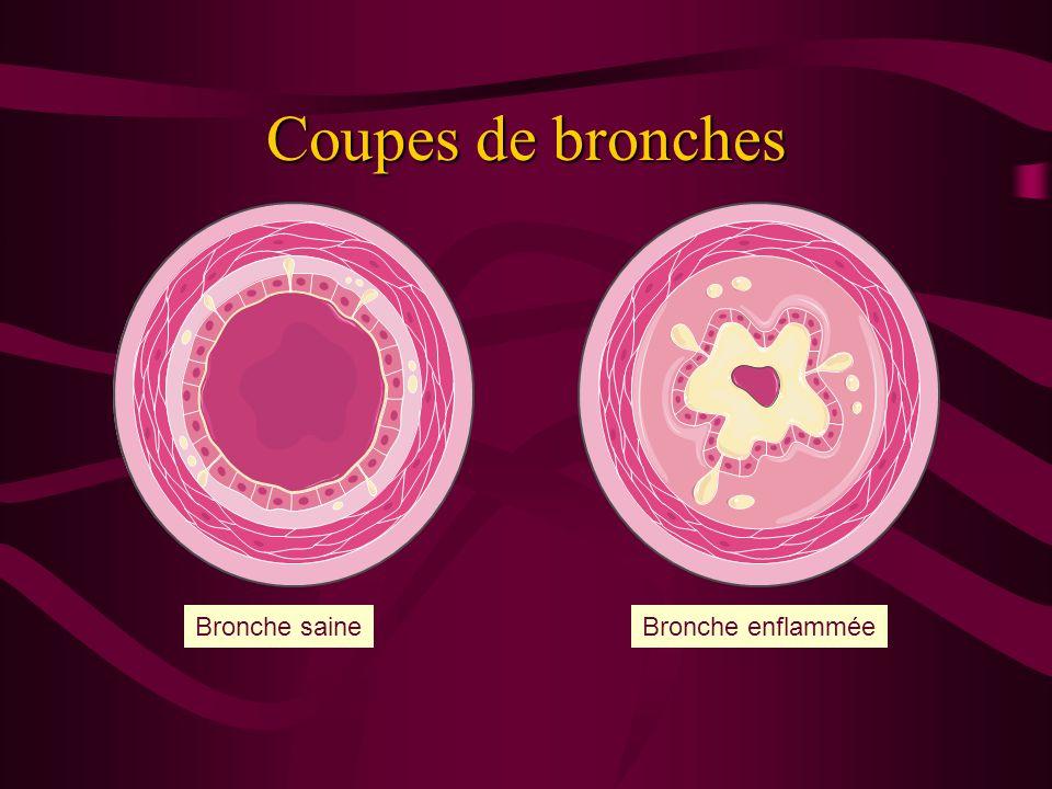 Coupes de bronches Bronche saine Bronche enflammée