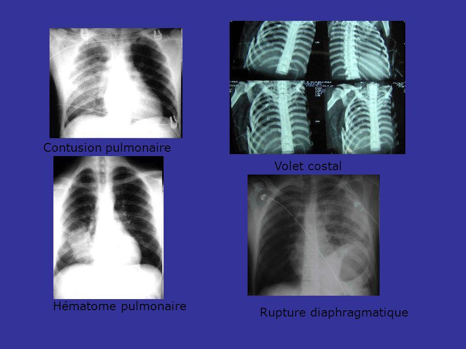 Contusion pulmonaire Volet costal Hématome pulmonaire Rupture diaphragmatique
