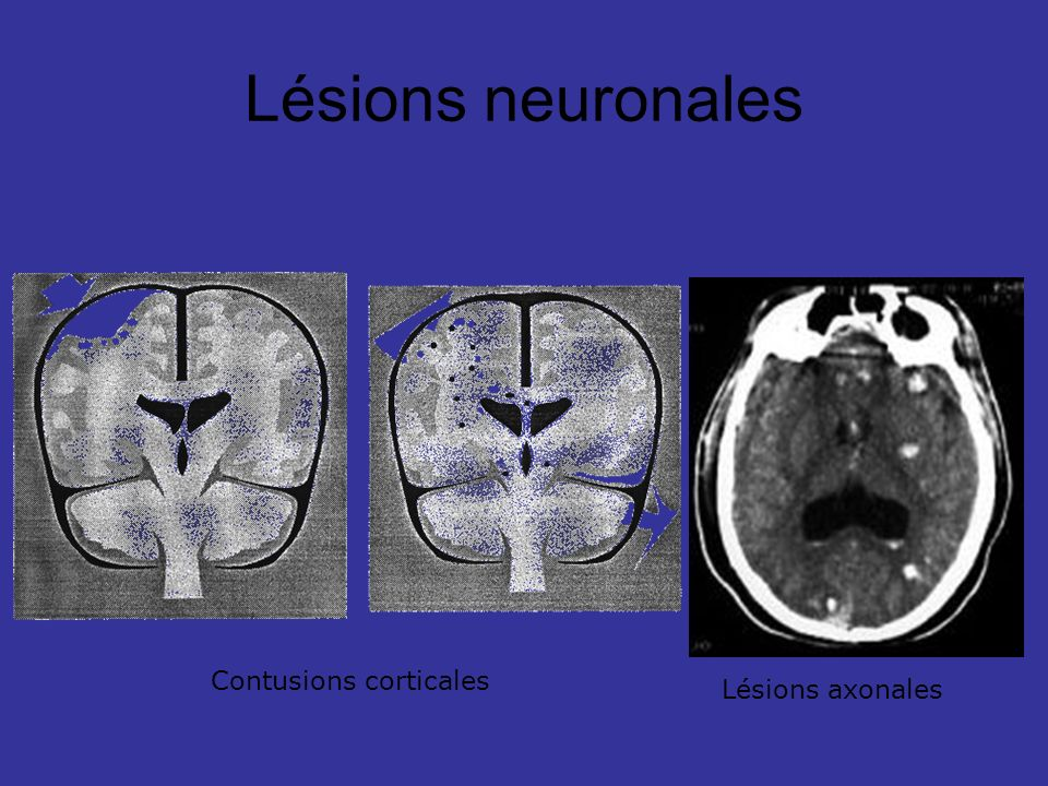 Lésions neuronales Contusions corticales Lésions axonales