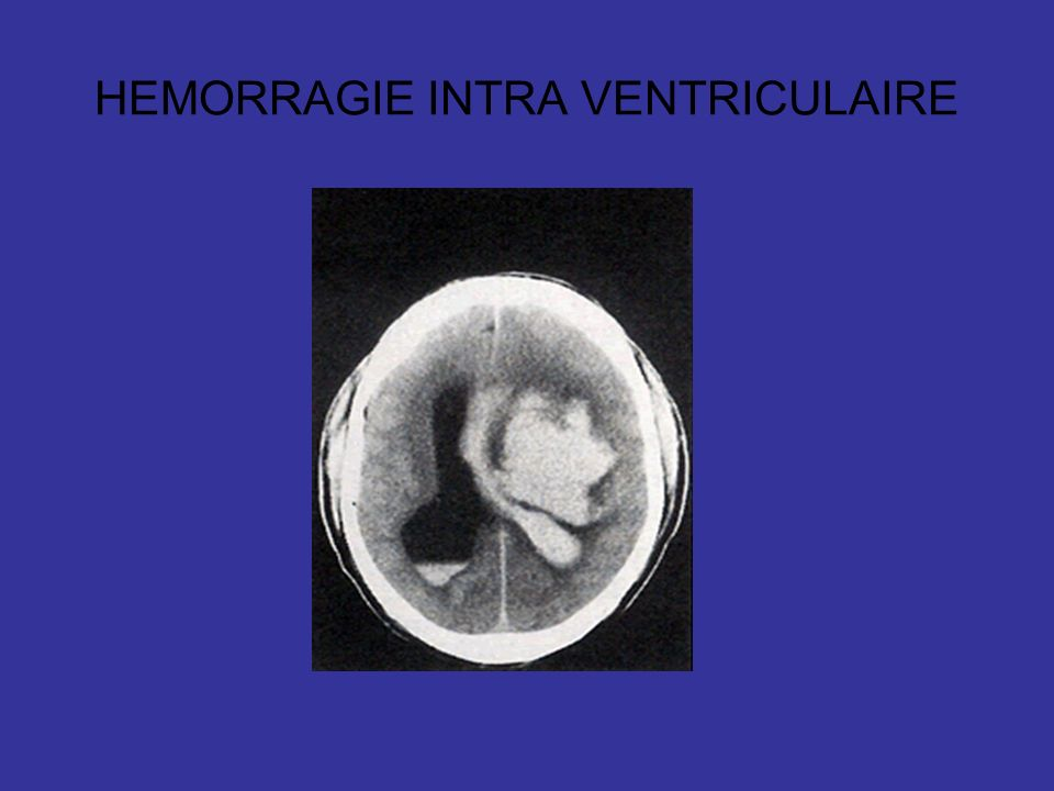 HEMORRAGIE INTRA VENTRICULAIRE