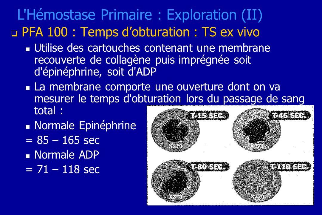 L Hémostase Primaire : Exploration (II)
