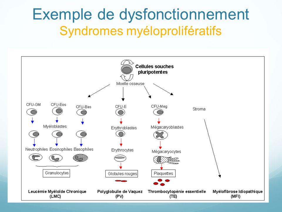 Exemple de dysfonctionnement Syndromes myéloprolifératifs