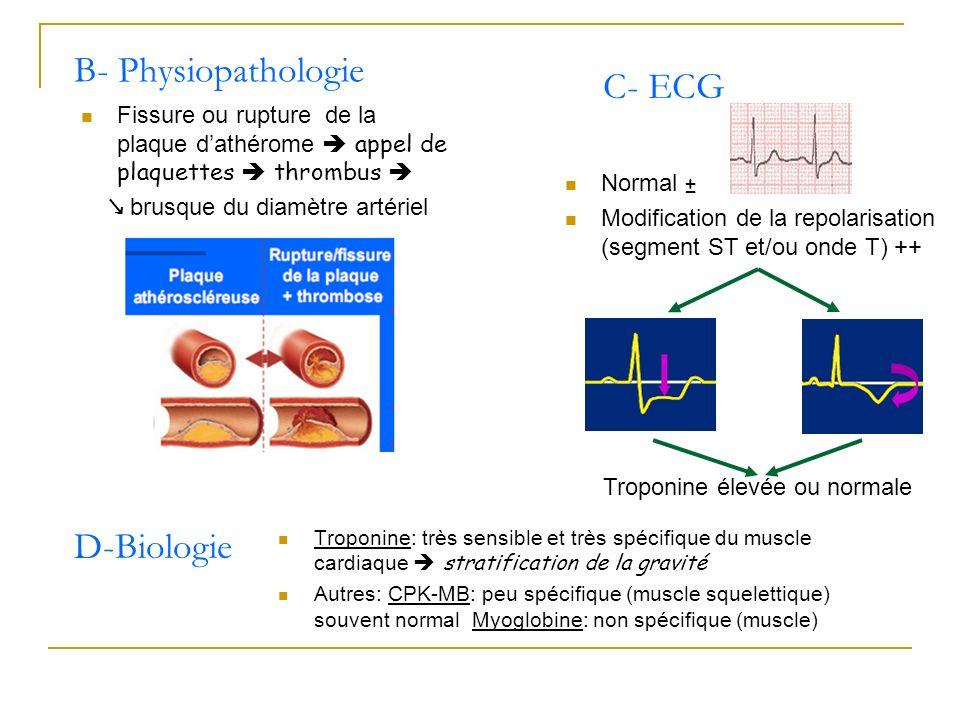 B- Physiopathologie C- ECG D-Biologie