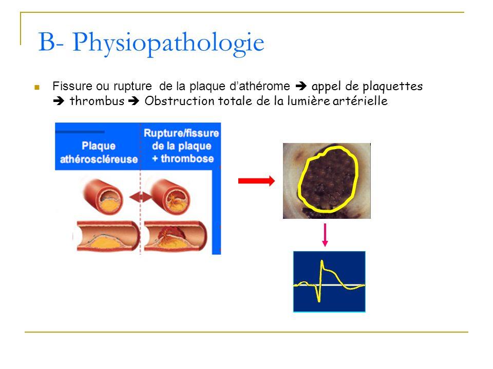 B- Physiopathologie Fissure ou rupture de la plaque d'athérome  appel de plaquettes  thrombus  Obstruction totale de la lumière artérielle.