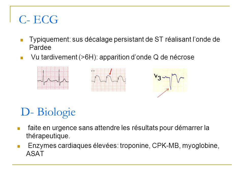 C- ECGTypiquement: sus décalage persistant de ST réalisant l'onde de Pardee. Vu tardivement (>6H): apparition d'onde Q de nécrose.