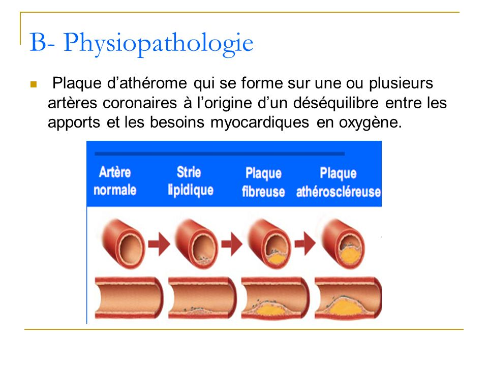 B- Physiopathologie