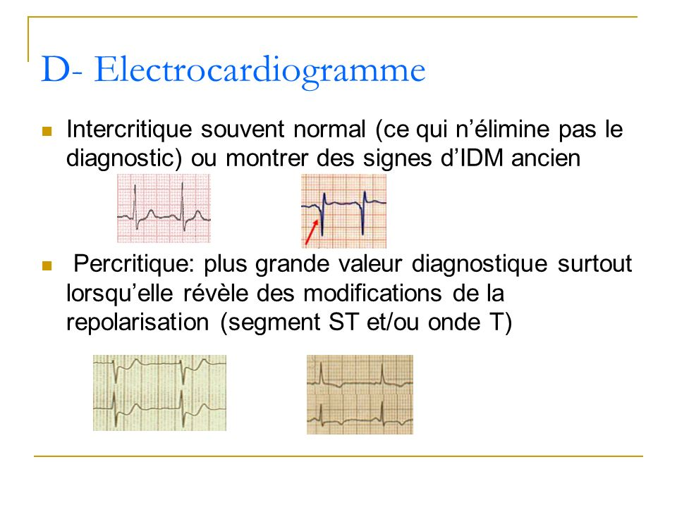 D- Electrocardiogramme