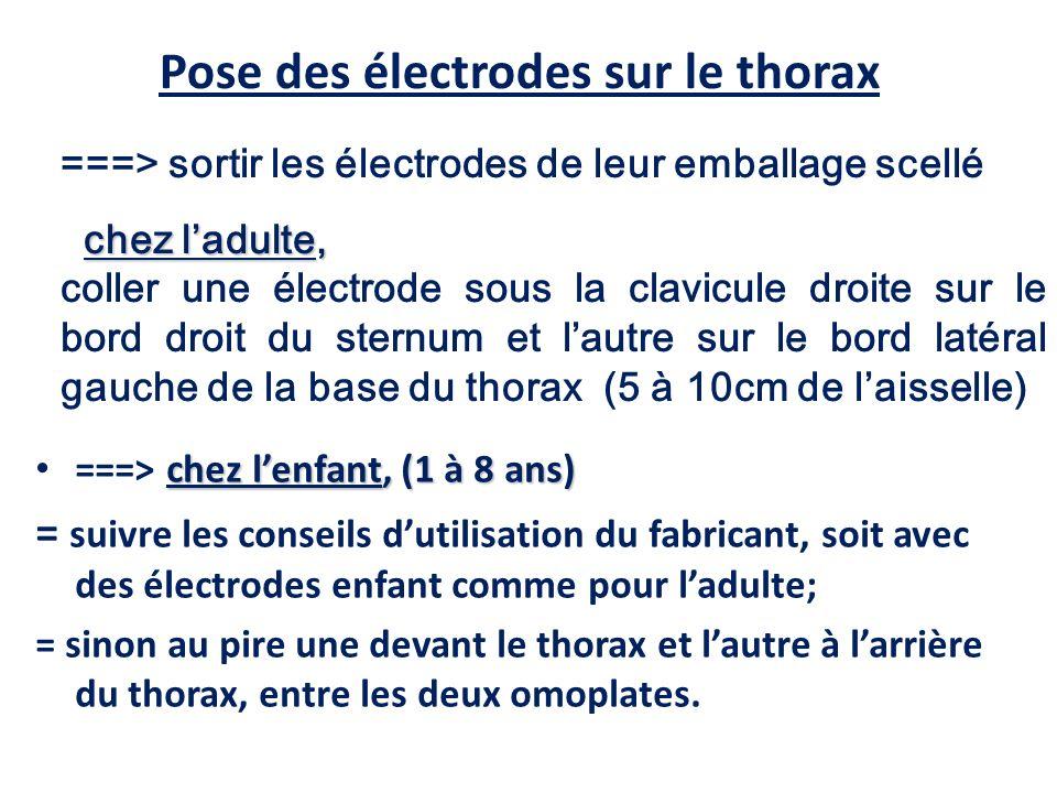 Pose des électrodes sur le thorax