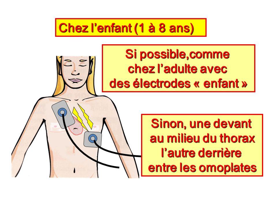 des électrodes « enfant »