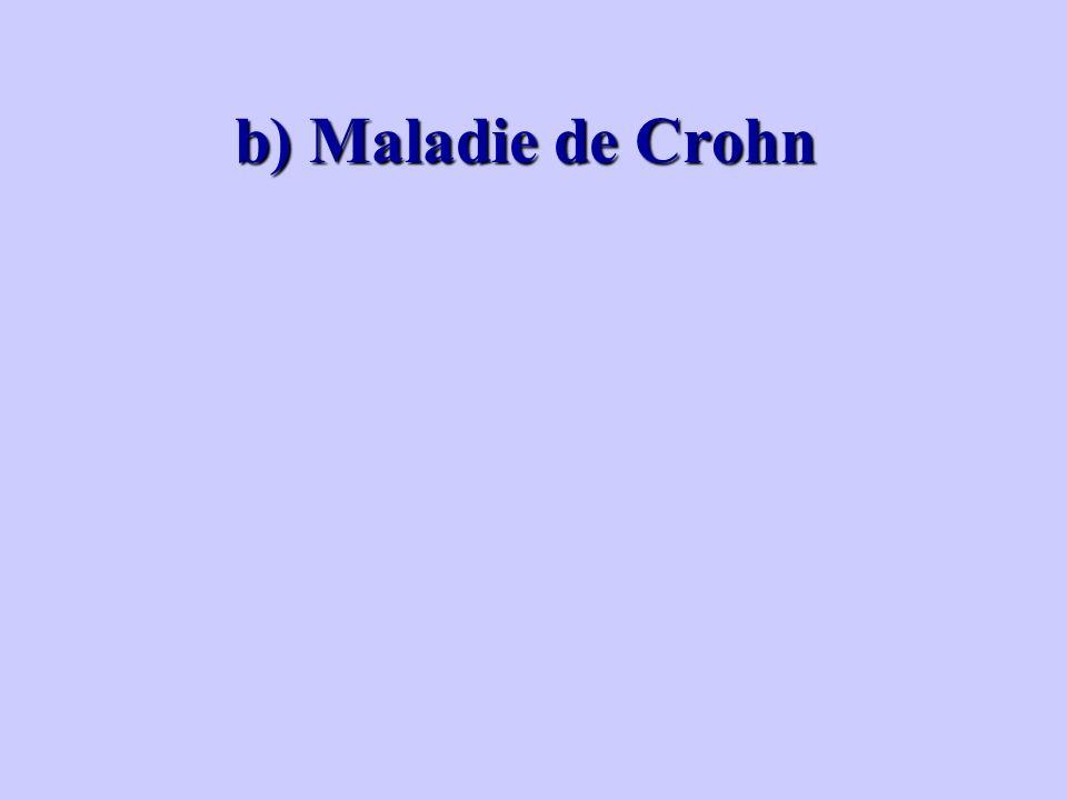 b) Maladie de Crohn