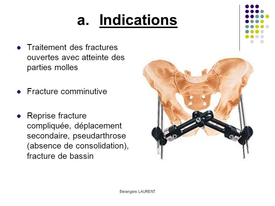 Indications Traitement des fractures ouvertes avec atteinte des parties molles. Fracture comminutive.