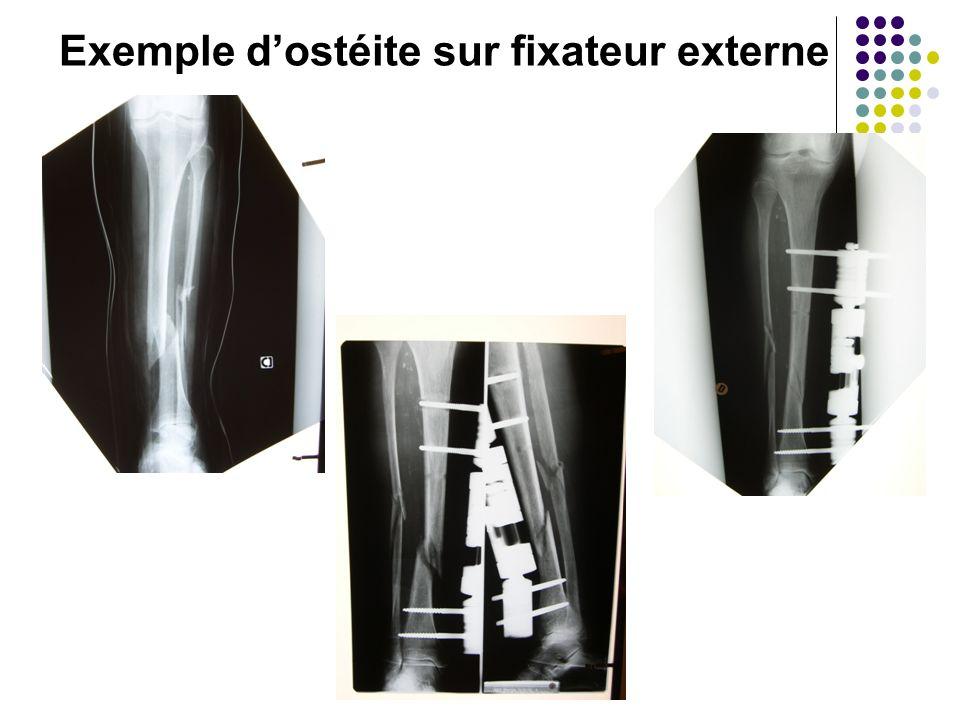 Exemple d'ostéite sur fixateur externe