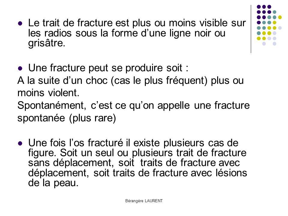 Une fracture peut se produire soit :