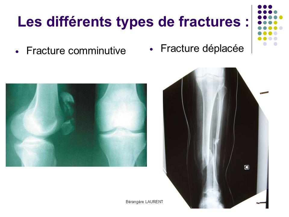 Les différents types de fractures :