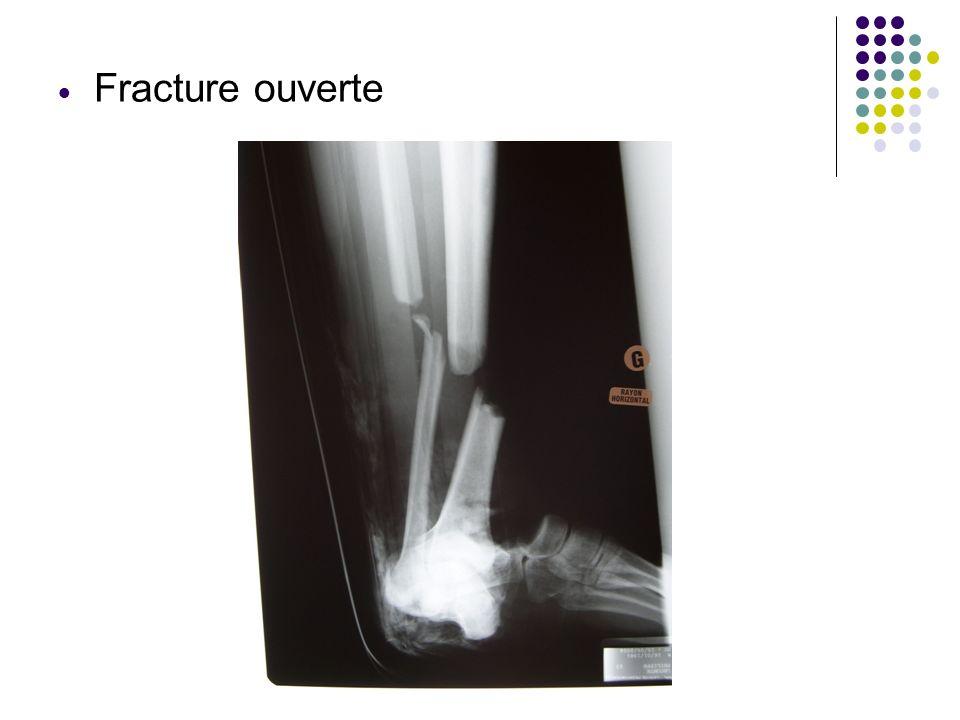 Fracture ouverte Bérangère LAURENT